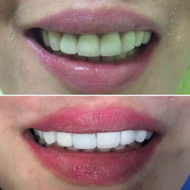 sunset dental clinic bali